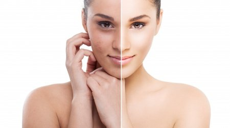 Chemical peel transformation