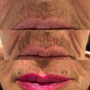 Plasma BT lips