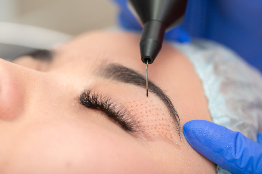 women receiving blepharoplasty