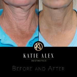before and after treatment comparison
