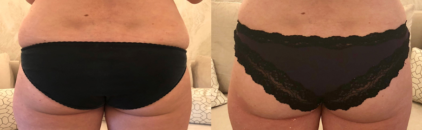 Exilis ultra before and after bottom