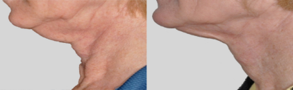 Exilis ultra before and after chin