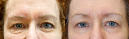 Exilis ultra before and after eyes